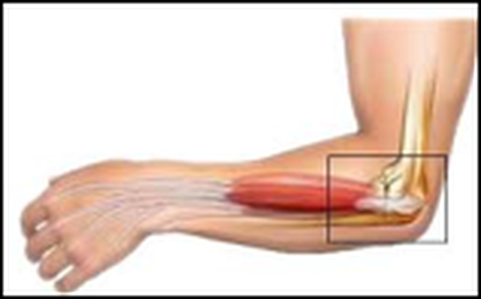 Tennis Elbow | Roland Jeffery Physiotherapy