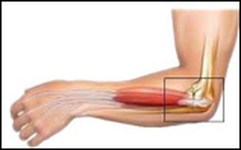 Tennis Elbow | Roland Jeffery Physiotherapy